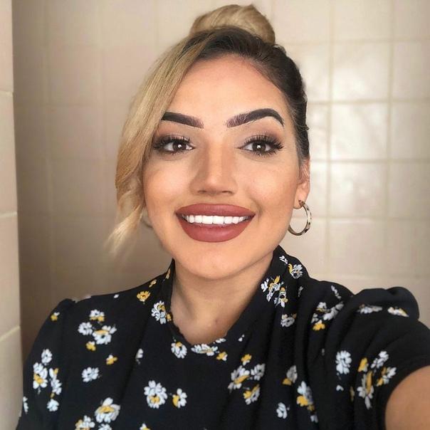 Девушка показала своё лицо без прикрас, устав скрывать акне с помощью ретуши и макияжа Ещё несколько лет назад 23-летняя Кадижа ни за что бы не поверила, что когда-нибудь будет работать моделью.