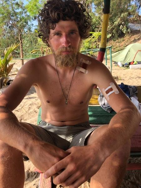 Российского путешественника едва не убили при ограблении в Сенегале. Он получил три ножевых ранения Путешественника https://vk.com/id9773889 Смагина ограбили на берегу Розового озера в Сенегале.
