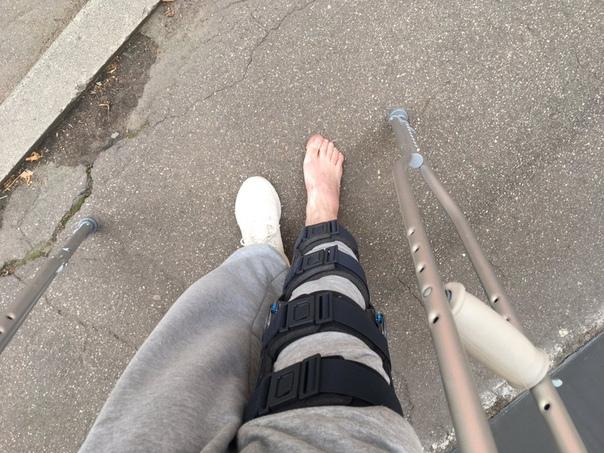 Художница Евгения Константинова по мотивам нападения на дизайнера CKonovalov, которому сломали ногу