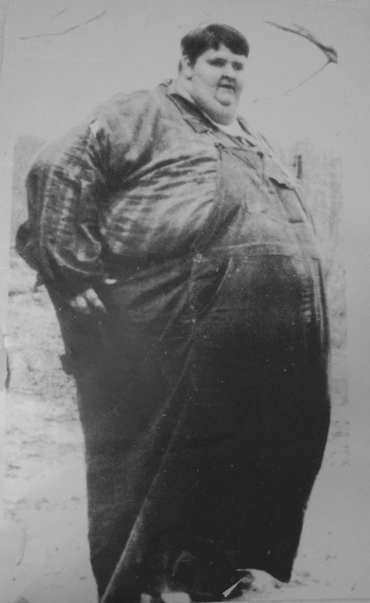 Самый тяжелый человек в истории медицины