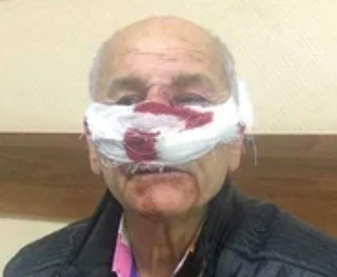 Врач скорой избил пожилого мужчину во время поездки в больницу Пенсионер из Петербурга обвинил врача скорой помощи в избиении. По словам пожилого мужчины, инцидент произошел по пути в больницу.