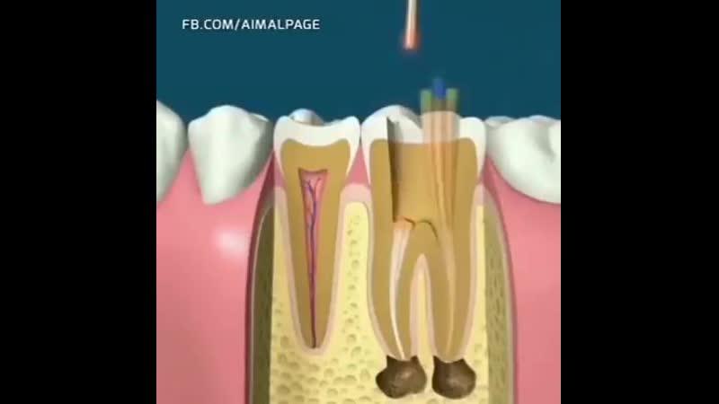 3D анимация обработки корневых каналов зубов